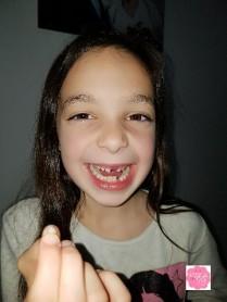 Encore une dent tombée ...